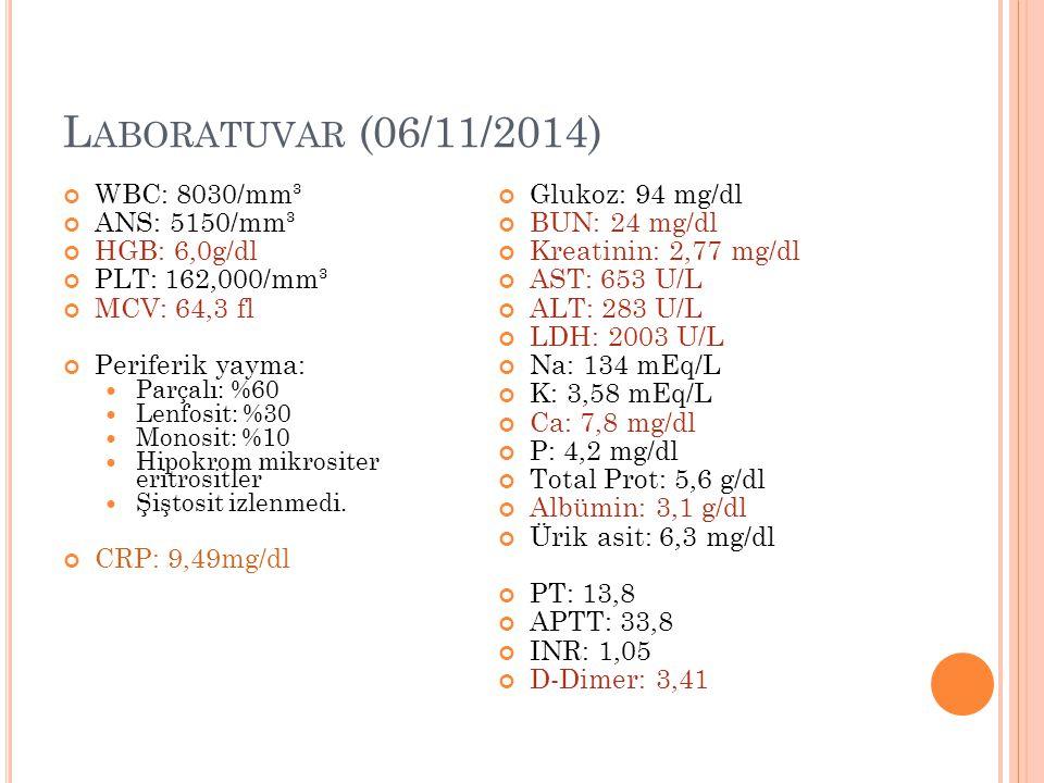 L ABORATUVAR (06/11/2014) WBC: 8030/mm³ ANS: 5150/mm³ HGB: 6,0g/dl PLT: 162,000/mm³ MCV: 64,3 fl Periferik yayma: Parçalı: %60 Lenfosit: %30 Monosit: