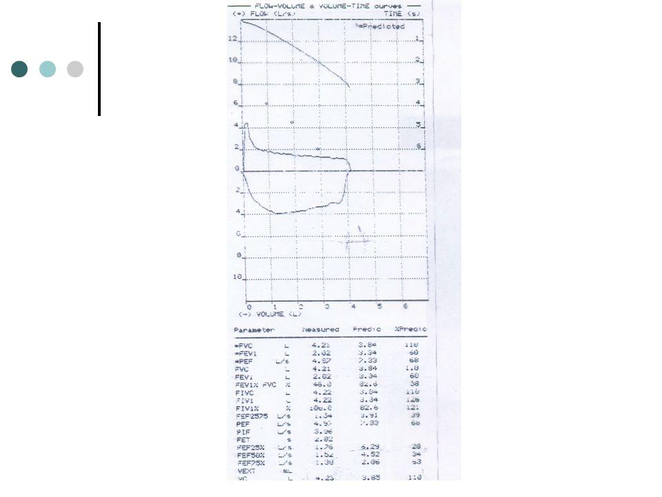 FEV1 : 2.02 L( %60) FVC : 4.21 L( %110) PEF : 4.97 L (%68 ) FEF25-75 : 1.34 L/s (%39) FEF25: 1.76 L/s (%28) FEF50: 1.52 L/s (%34) FEF75: 1.30 L/s (%63)