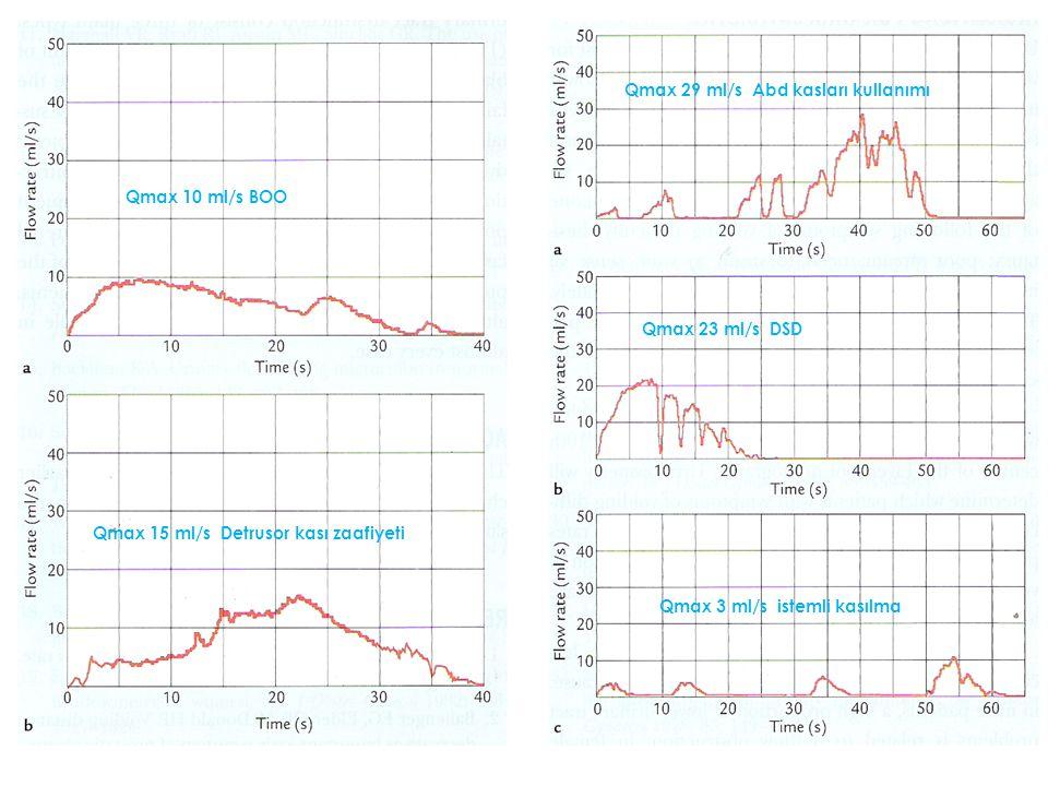 Qmax 10 ml/s BOO Qmax 15 ml/s Detrusor kası zaafiyeti Qmax 29 ml/s Abd kasları kullanımı Qmax 23 ml/s DSD Qmax 3 ml/s istemli kasılma