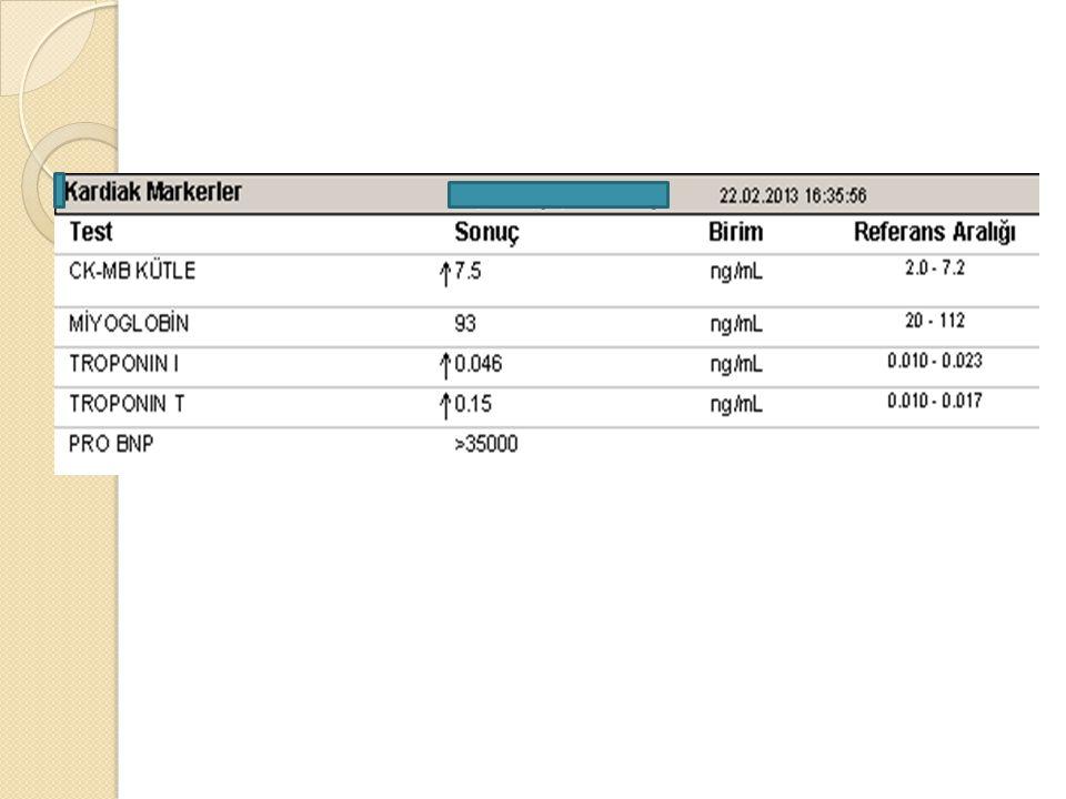 ◦ EBV: negatif ◦ HBSAG: Negatif ◦ Rubella IgM: negatif ◦ CMV IgM: Negatif ◦ Anti HCV: Negatif