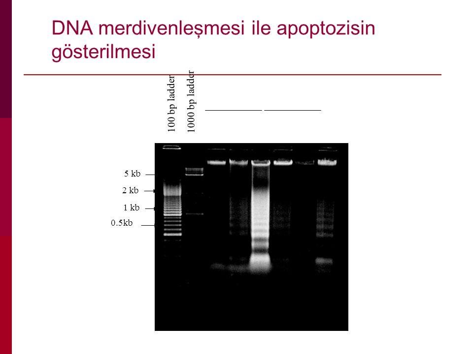 100 bp ladder 1000 bp ladder 1 kb 0.5kb 2 kb DNA merdivenleşmesi ile apoptozisin gösterilmesi 5 kb