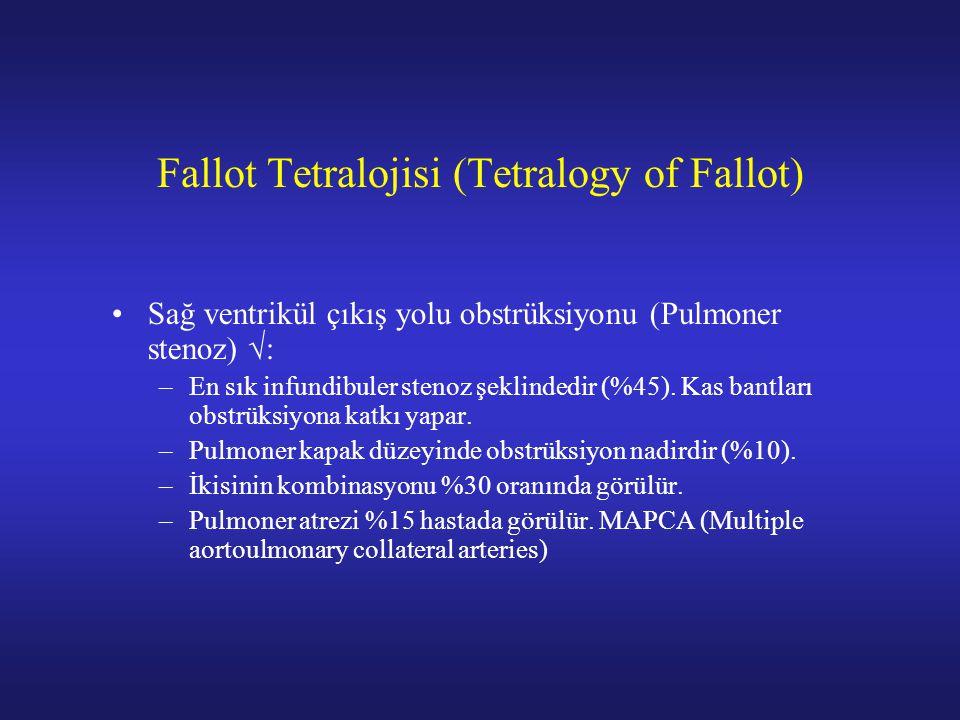 Fallot Tetralojisi (Tetralogy of Fallot) Sağ ventrikül çıkış yolu obstrüksiyonu (Pulmoner stenoz) √: –En sık infundibuler stenoz şeklindedir (%45).