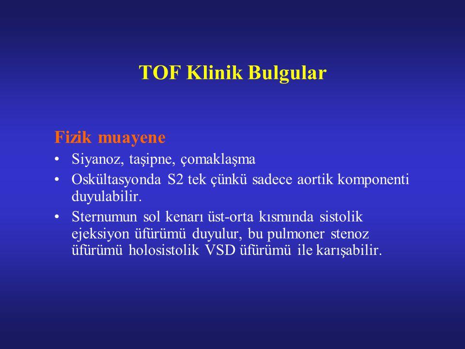 TOF Klinik Bulgular Fizik muayene Siyanoz, taşipne, çomaklaşma Oskültasyonda S2 tek çünkü sadece aortik komponenti duyulabilir.