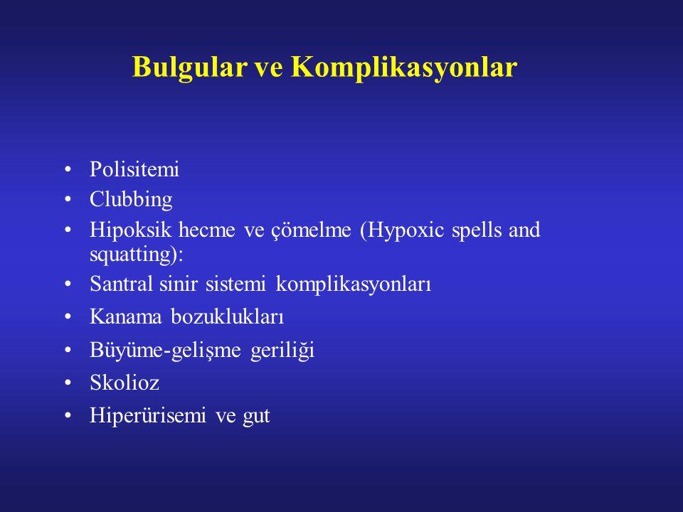Bulgular ve Komplikasyonlar Polisitemi Clubbing Hipoksik hecme ve çömelme (Hypoxic spells and squatting): Santral sinir sistemi komplikasyonları Kanama bozuklukları Büyüme-gelişme geriliği Skolioz Hiperürisemi ve gut