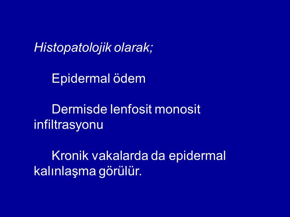 Histopatolojik olarak; Epidermal ödem Dermisde lenfosit monosit infiltrasyonu Kronik vakalarda da epidermal kalınlaşma görülür.
