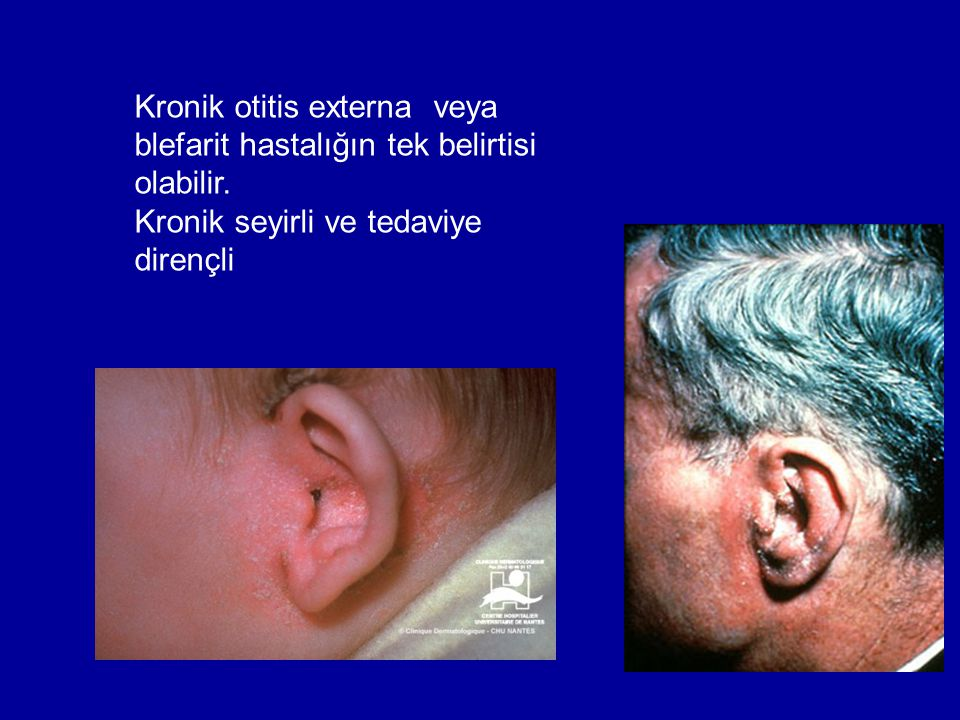 Kronik otitis externa veya blefarit hastalığın tek belirtisi olabilir. Kronik seyirli ve tedaviye dirençli