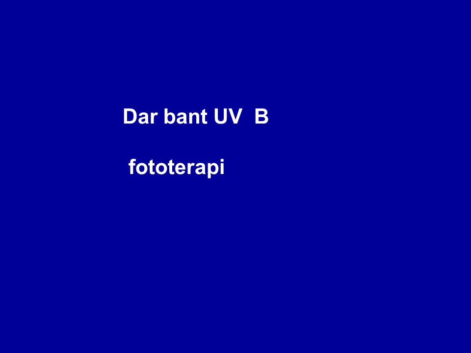 Dar bant UV B fototerapi