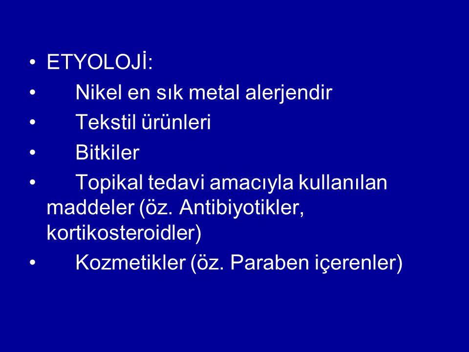 ETYOLOJİ: Nikel en sık metal alerjendir Tekstil ürünleri Bitkiler Topikal tedavi amacıyla kullanılan maddeler (öz. Antibiyotikler, kortikosteroidler)