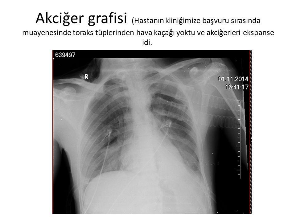 Akciğer grafisi (Hastanın kliniğimize başvuru sırasında muayenesinde toraks tüplerinden hava kaçağı yoktu ve akciğerleri ekspanse idi.