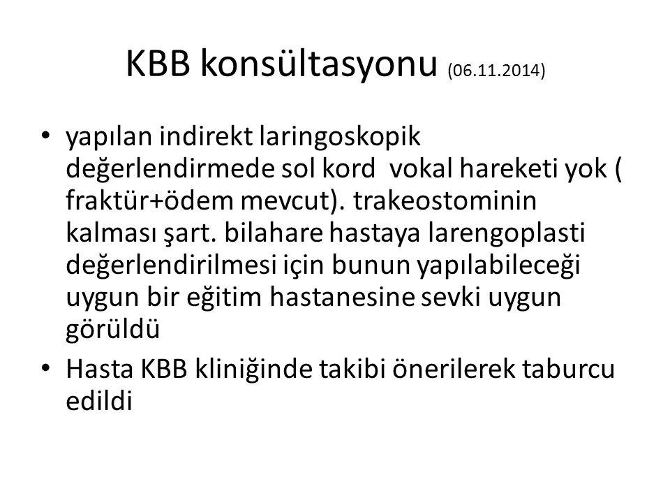 KBB konsültasyonu (06.11.2014) yapılan indirekt laringoskopik değerlendirmede sol kord vokal hareketi yok ( fraktür+ödem mevcut). trakeostominin kalma