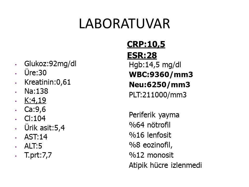 LABORATUVAR Glukoz:92mg/dl Üre:30 Kreatinin:0,61 Na:138 K:4,19 Ca:9,6 Cl:104 Ürik asit:5,4 AST:14 ALT:5 T.prt:7,7 CRP:10,5 ESR:28 Hgb:14,5 mg/dl WBC:9