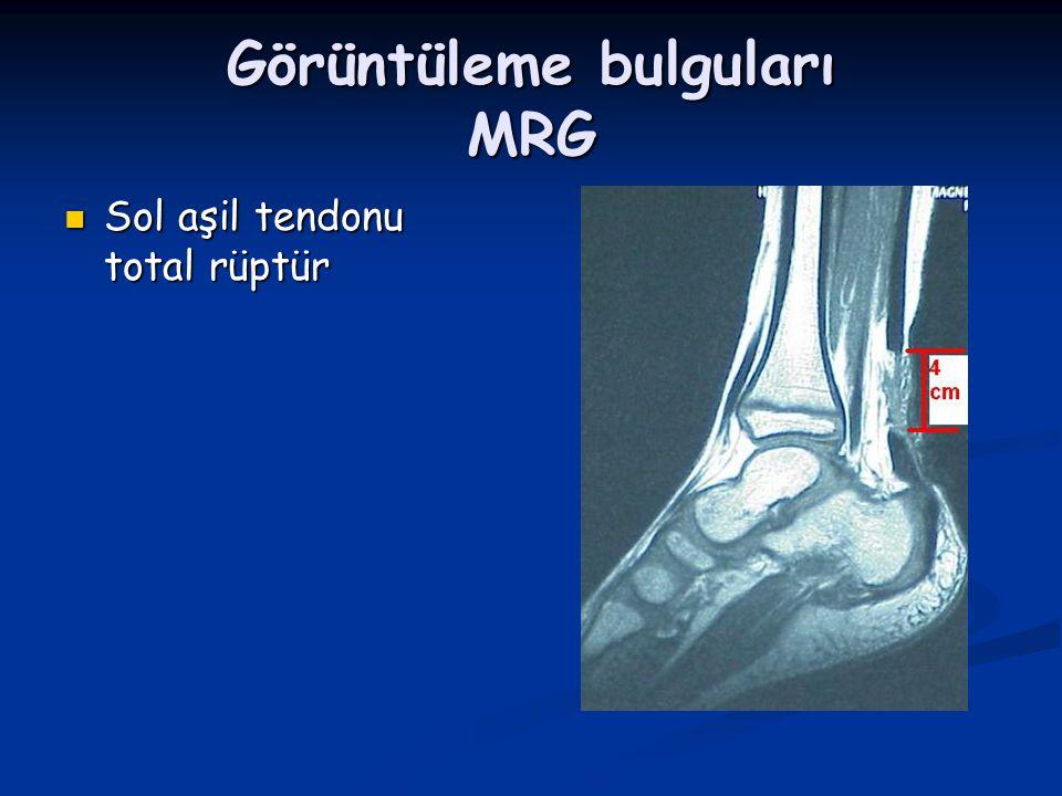 Görüntüleme bulguları MRG Sol aşil tendonu total rüptür Sol aşil tendonu total rüptür