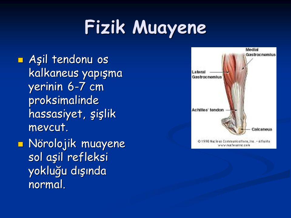 Fizik Muayene Aşil tendonu os kalkaneus yapışma yerinin 6-7 cm proksimalinde hassasiyet, şişlik mevcut. Aşil tendonu os kalkaneus yapışma yerinin 6-7
