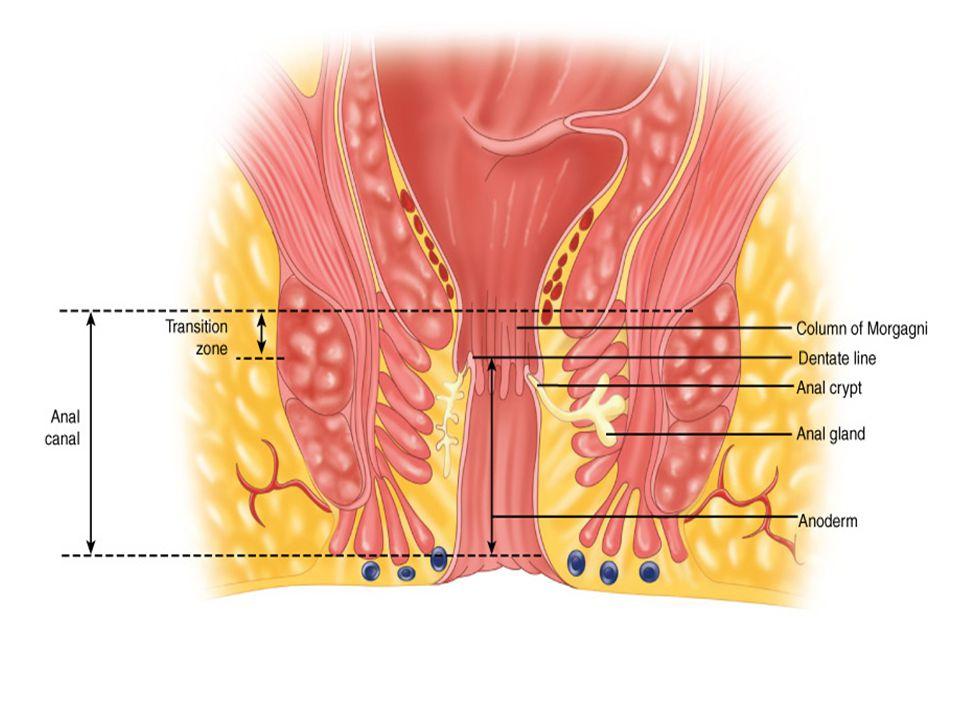  Anal ağrı, ateş, kızarıklık, şişlik  İskiorektal; şişlik lateralde  Yüksek intermusküler; şişlik yok, digital mua.