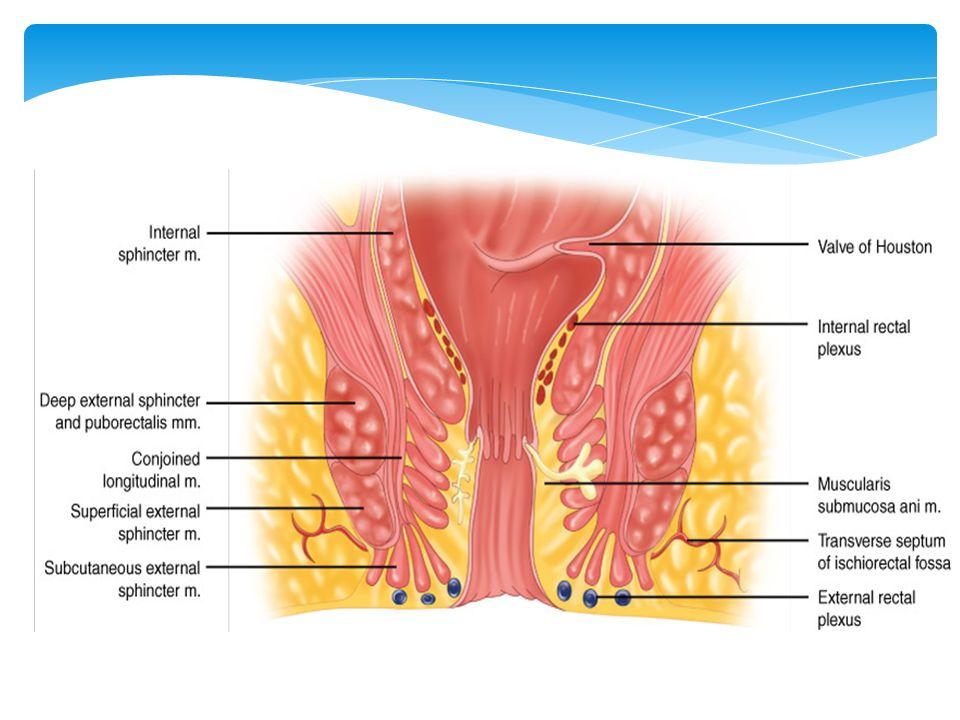  Genelde posterior yerleşimli, yüzeyel eksternal sfinkter hizasında (minör üçgen)  Lateral fissürler; tbc, sifilis, Crohn, ülseratif kolit  Proksimalde hipertrofik papilla, Distalde deri çıkıntısı (sentinel pile)  Belirtiler ; ağrı, kanama  Çocukluktaki hematokezyanın en sık nedenidir Anal Fissür