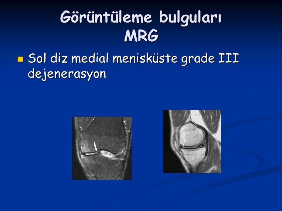 Görüntüleme bulguları MRG Sol diz medial menisküste grade III dejenerasyon Sol diz medial menisküste grade III dejenerasyon