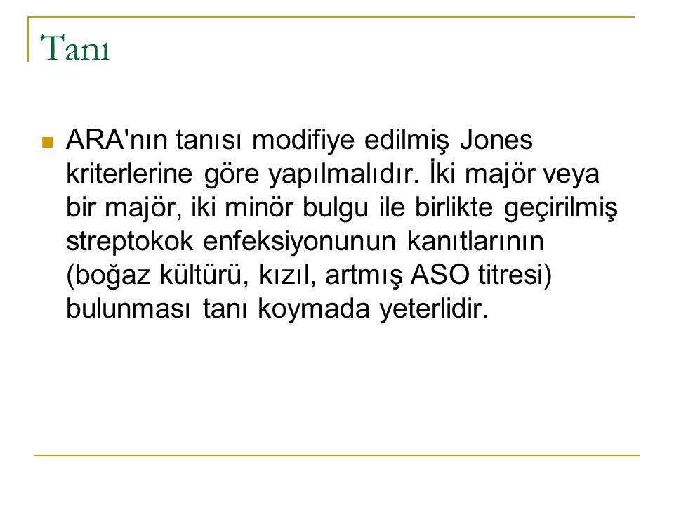 Tanı ARA'nın tanısı modifiye edilmiş Jones kriterlerine göre yapılmalıdır. İki majör veya bir majör, iki minör bulgu ile birlikte geçirilmiş streptoko