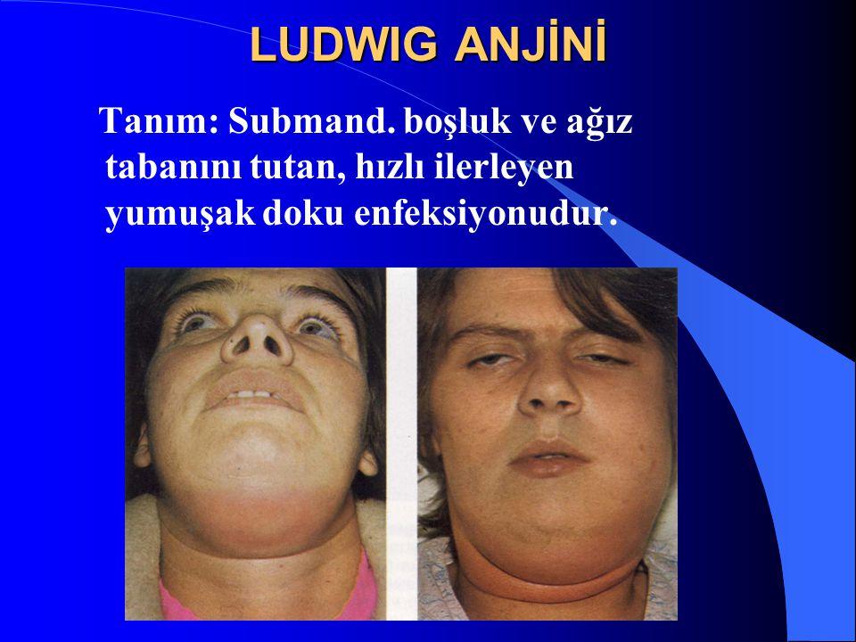 LUDWIG ANJİNİ Tanım: Submand. boşluk ve ağız tabanını tutan, hızlı ilerleyen yumuşak doku enfeksiyonudur.