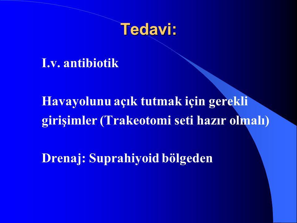 Tedavi: I.v. antibiotik Havayolunu açık tutmak için gerekli girişimler (Trakeotomi seti hazır olmalı) Drenaj: Suprahiyoid bölgeden