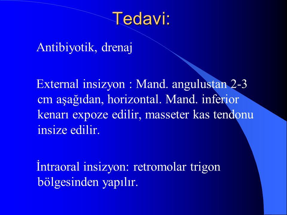 Tedavi: Antibiyotik, drenaj External insizyon : Mand. angulustan 2-3 cm aşağıdan, horizontal. Mand. inferior kenarı expoze edilir, masseter kas tendon