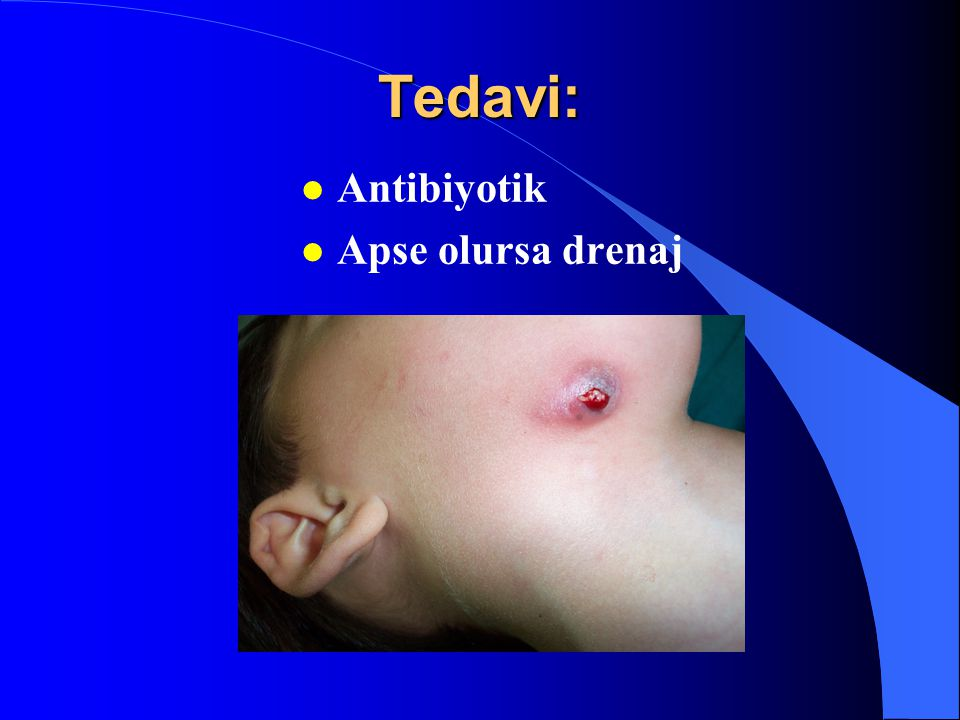 Tedavi: l Antibiyotik l Apse olursa drenaj