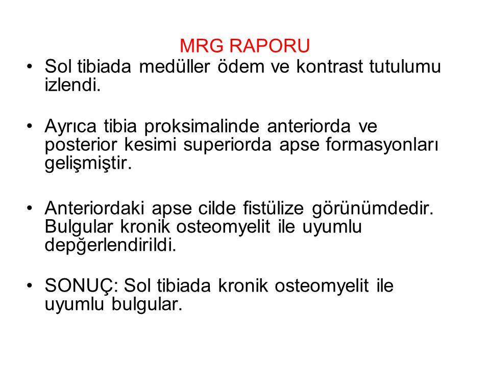 MRG RAPORU Sol tibiada medüller ödem ve kontrast tutulumu izlendi. Ayrıca tibia proksimalinde anteriorda ve posterior kesimi superiorda apse formasyon
