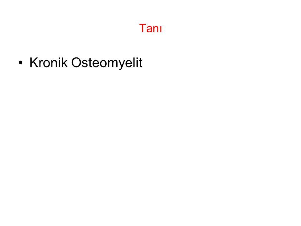 Tanı Kronik Osteomyelit
