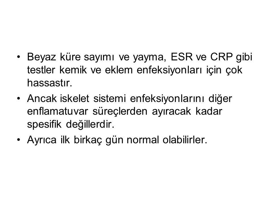 Beyaz küre sayımı ve yayma, ESR ve CRP gibi testler kemik ve eklem enfeksiyonları için çok hassastır. Ancak iskelet sistemi enfeksiyonlarını diğer enf