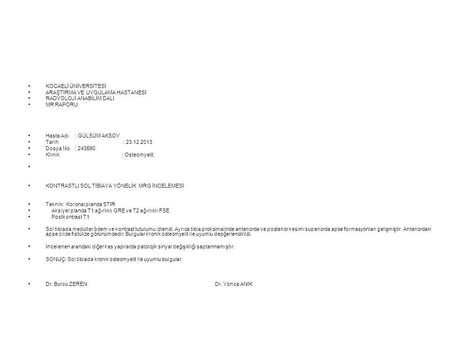 KOCAELİ ÜNİVERSİTESİ ARAŞTIRMA VE UYGULAMA HASTANESİ RADYOLOJİ ANABİLİM DALI MR RAPORU Hasta Adı: GÜLSÜM AKSOY Tarih : 23.12.2013 Dosya No: 243590 Kli