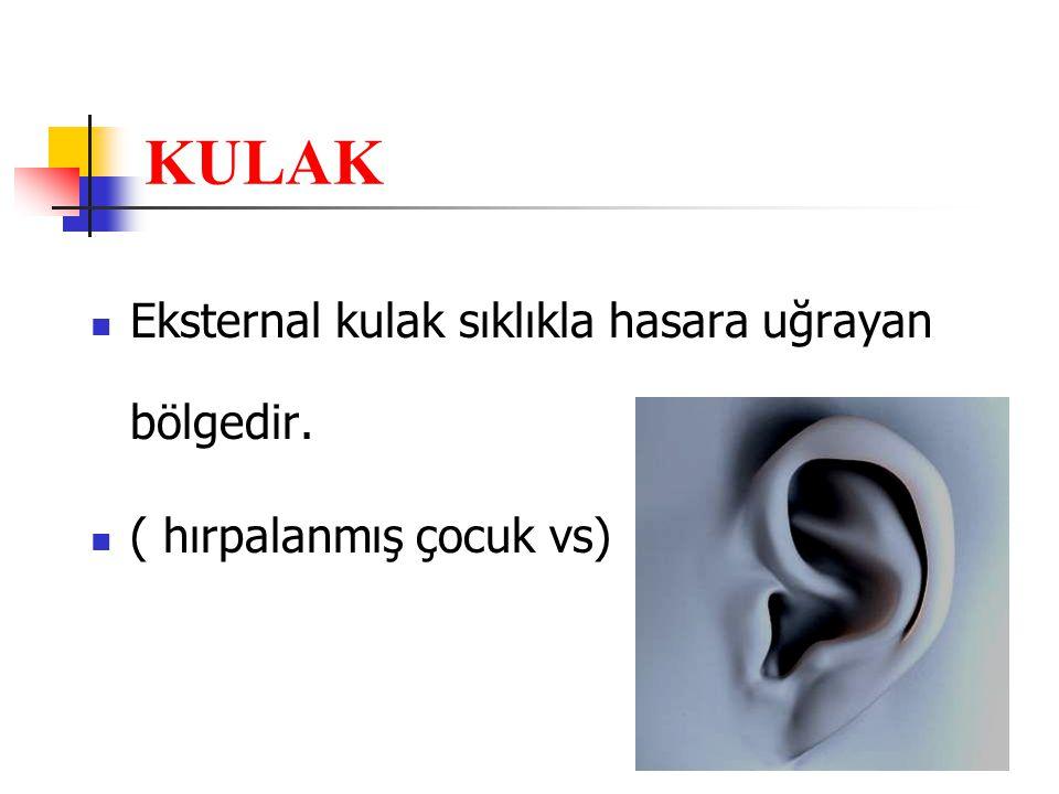 KULAK Eksternal kulak sıklıkla hasara uğrayan bölgedir. ( hırpalanmış çocuk vs)