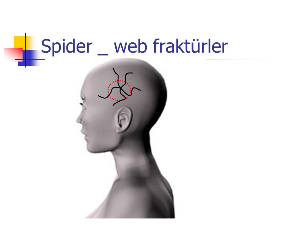 Spider _ web fraktürler