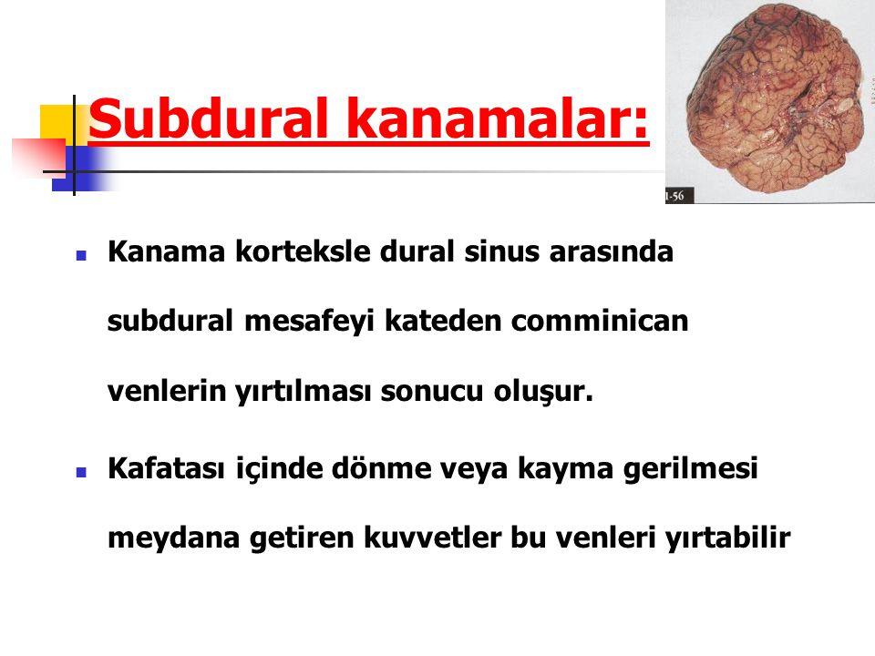 Subdural kanamalar: Kanama korteksle dural sinus arasında subdural mesafeyi kateden comminican venlerin yırtılması sonucu oluşur. Kafatası içinde dönm
