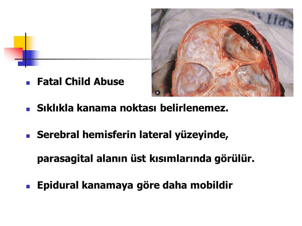 Fatal Child Abuse Sıklıkla kanama noktası belirlenemez. Serebral hemisferin lateral yüzeyinde, parasagital alanın üst kısımlarında görülür. Epidural k