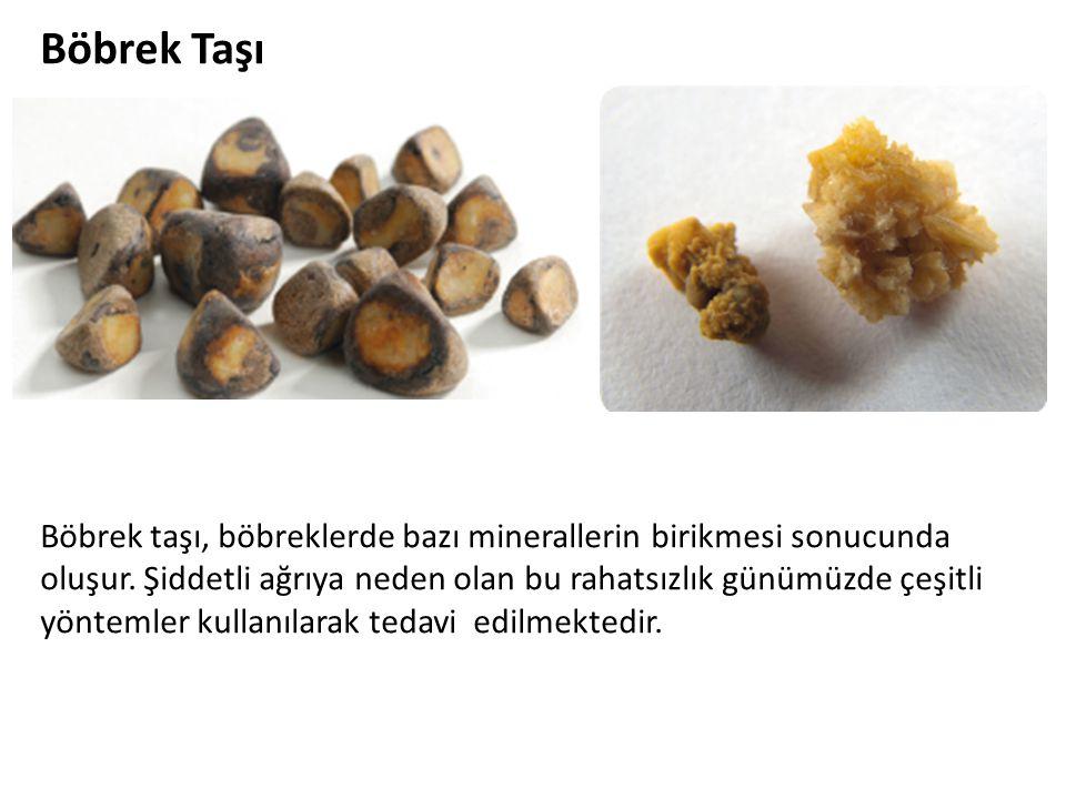 Böbrek Taşı Böbrek taşı, böbreklerde bazı minerallerin birikmesi sonucunda oluşur. Şiddetli ağrıya neden olan bu rahatsızlık günümüzde çeşitli yönteml