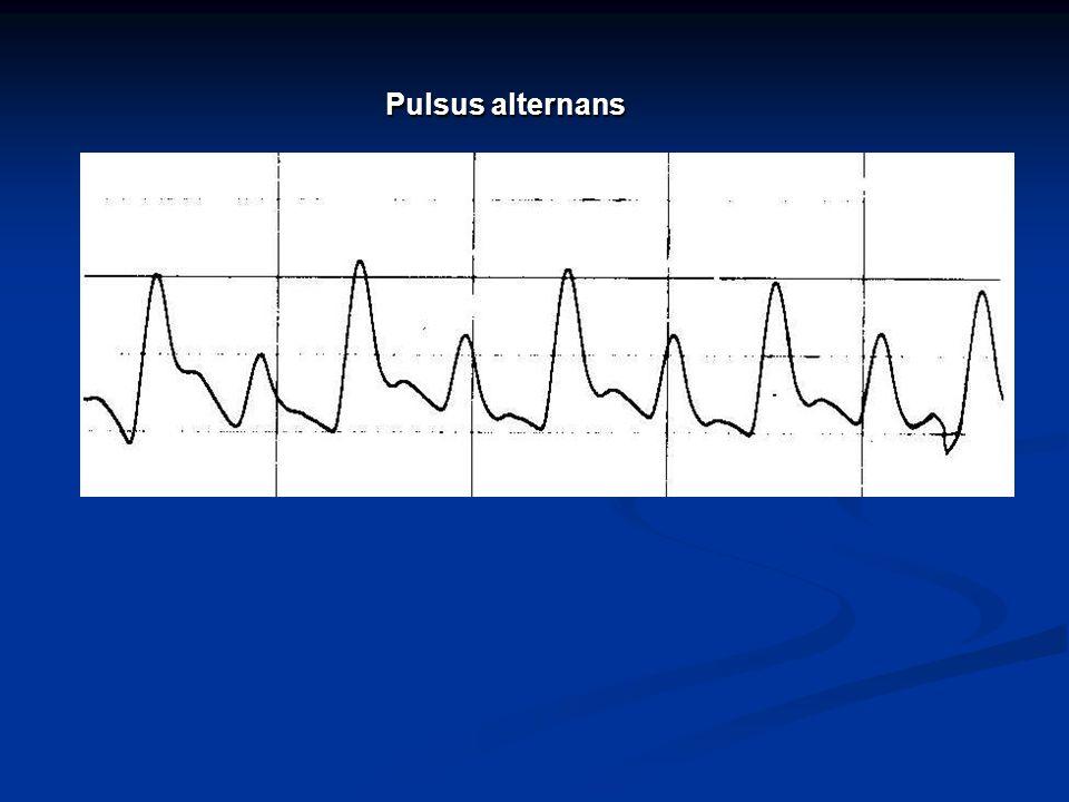 Pulsus alternans