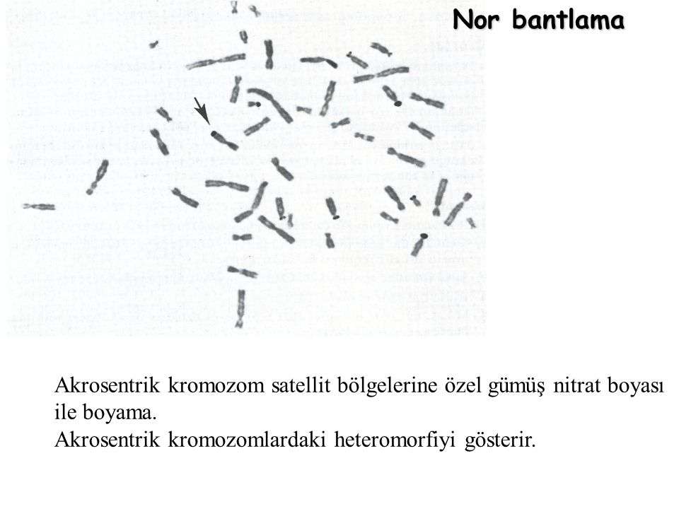 Nor bantlama Akrosentrik kromozom satellit bölgelerine özel gümüş nitrat boyası ile boyama. Akrosentrik kromozomlardaki heteromorfiyi gösterir.