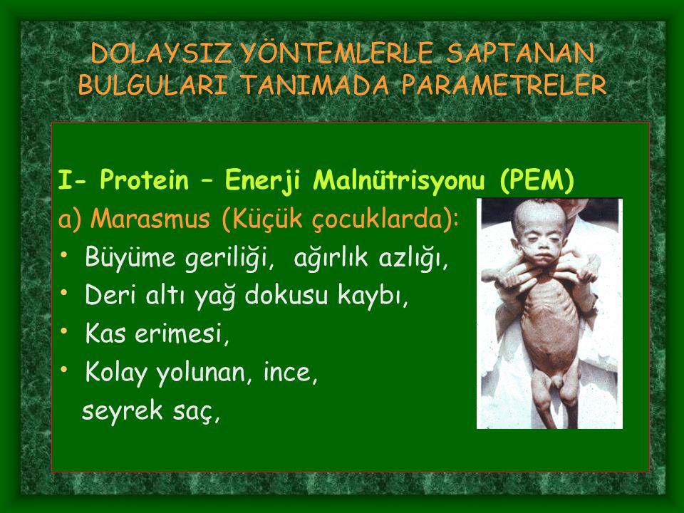 DOLAYSIZ YÖNTEMLERLE SAPTANAN BULGULARI TANIMADA PARAMETRELER I- Protein – Enerji Malnütrisyonu (PEM) a) Marasmus (Küçük çocuklarda): Büyüme geriliği,