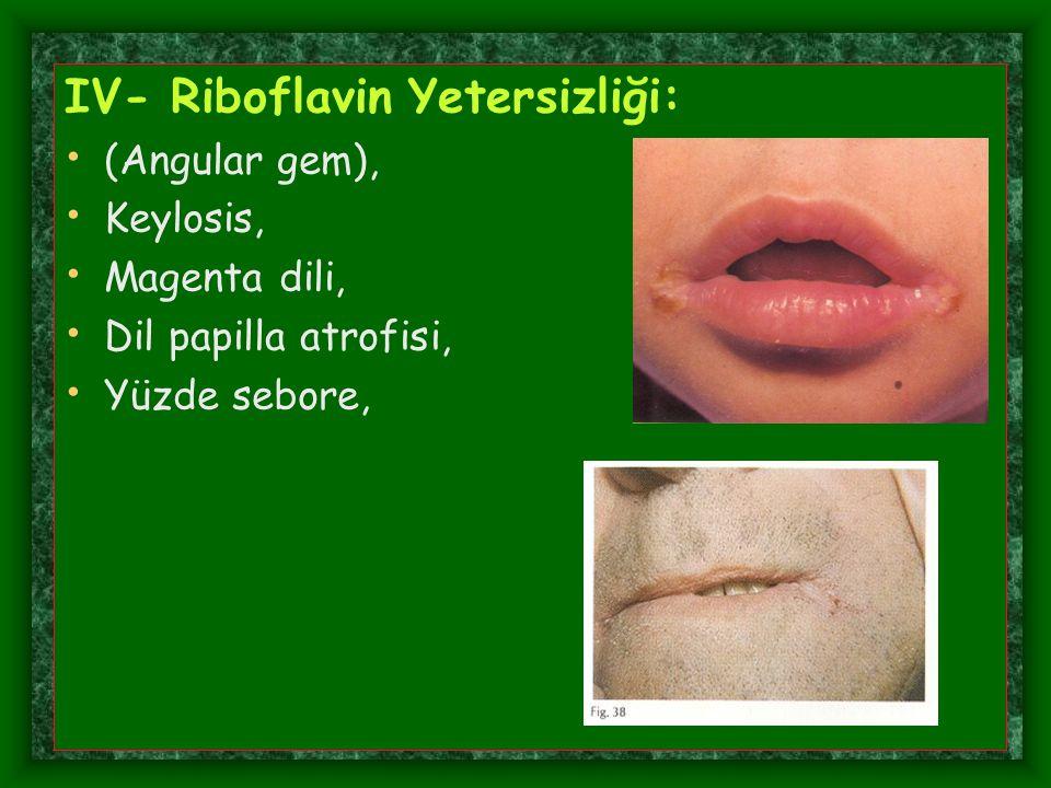 IV- Riboflavin Yetersizliği: (Angular gem), Keylosis, Magenta dili, Dil papilla atrofisi, Yüzde sebore,