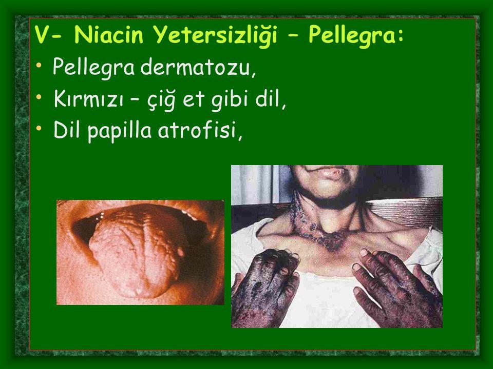 V- Niacin Yetersizliği – Pellegra: Pellegra dermatozu, Kırmızı – çiğ et gibi dil, Dil papilla atrofisi,