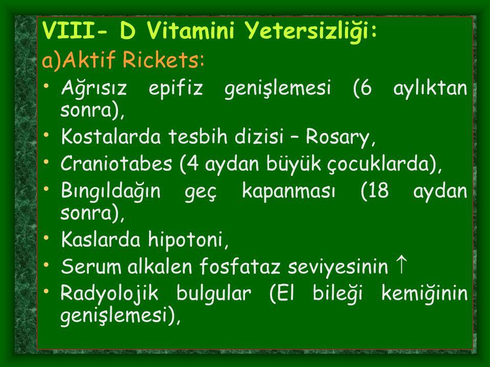 VIII- D Vitamini Yetersizliği: a)Aktif Rickets: Ağrısız epifiz genişlemesi (6 aylıktan sonra), Kostalarda tesbih dizisi – Rosary, Craniotabes (4 aydan