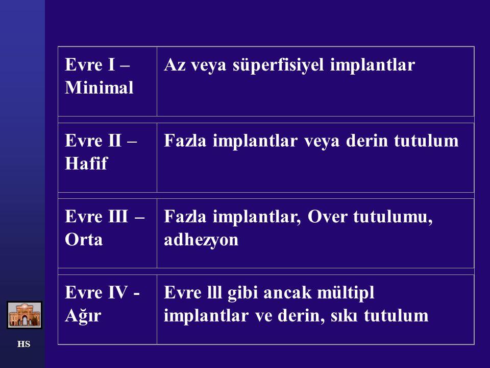 HS Evre I – Minimal Az veya süperfisiyel implantlar Evre II – Hafif Fazla implantlar veya derin tutulum Evre III – Orta Fazla implantlar, Over tutulum