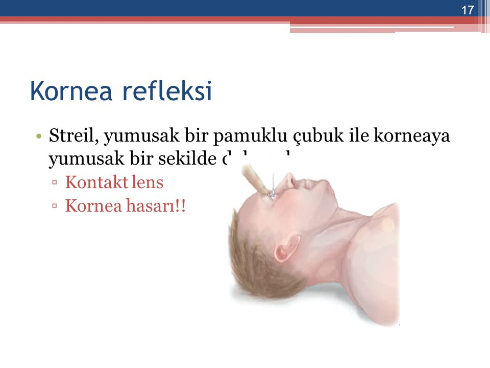 Vestibulo-oküler refleks yokluğu (Kalorik test) 50 ml buzlu serum fizyolojik dıs kulak yoluna verilir Göz hareketi olmamalı Sorunlar ▫Dıs kulak yolunun tıkalı olması 18