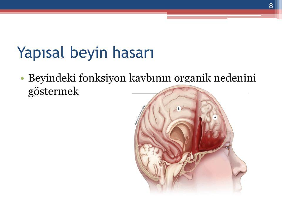Yapısal beyin hasarı Bilgisayarlı tomografi ▫Kitle ▫Yaygın ödem ▫Shift ▫Herniyasyon İskemide erken bulgu.