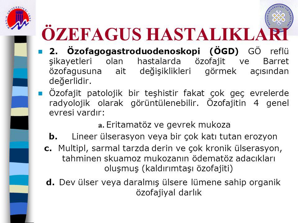 ÖZEFAGUS HASTALIKLARI 2. Özofagogastroduodenoskopi (ÖGD) GÖ reflü şikayetleri olan hastalarda özofajit ve Barret özofagusuna ait değişiklikleri görmek