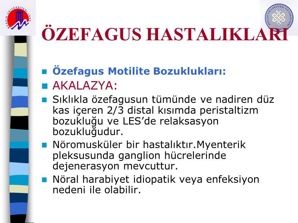 ÖZEFAGUS HASTALIKLARI Özefagus Motilite Bozuklukları: AKALAZYA: Sıklıkla özefagusun tümünde ve nadiren düz kas içeren 2/3 distal kısımda peristaltizm