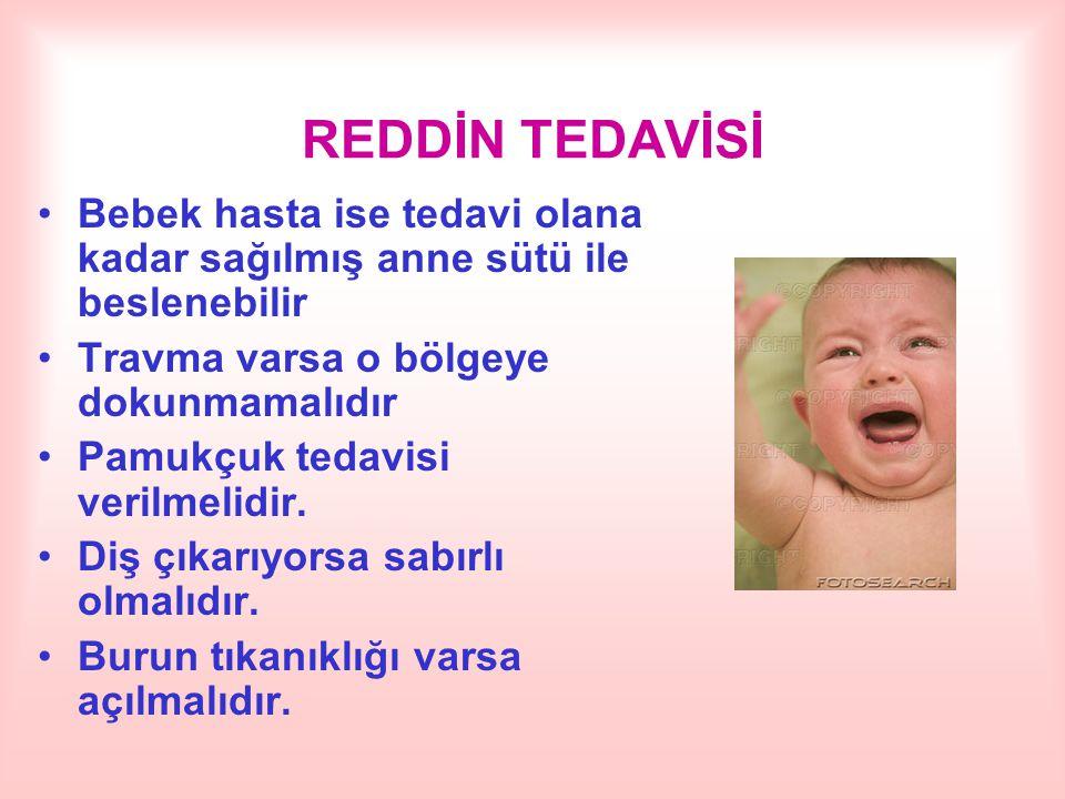 REDDİN TEDAVİSİ Bebek hasta ise tedavi olana kadar sağılmış anne sütü ile beslenebilir Travma varsa o bölgeye dokunmamalıdır Pamukçuk tedavisi verilme
