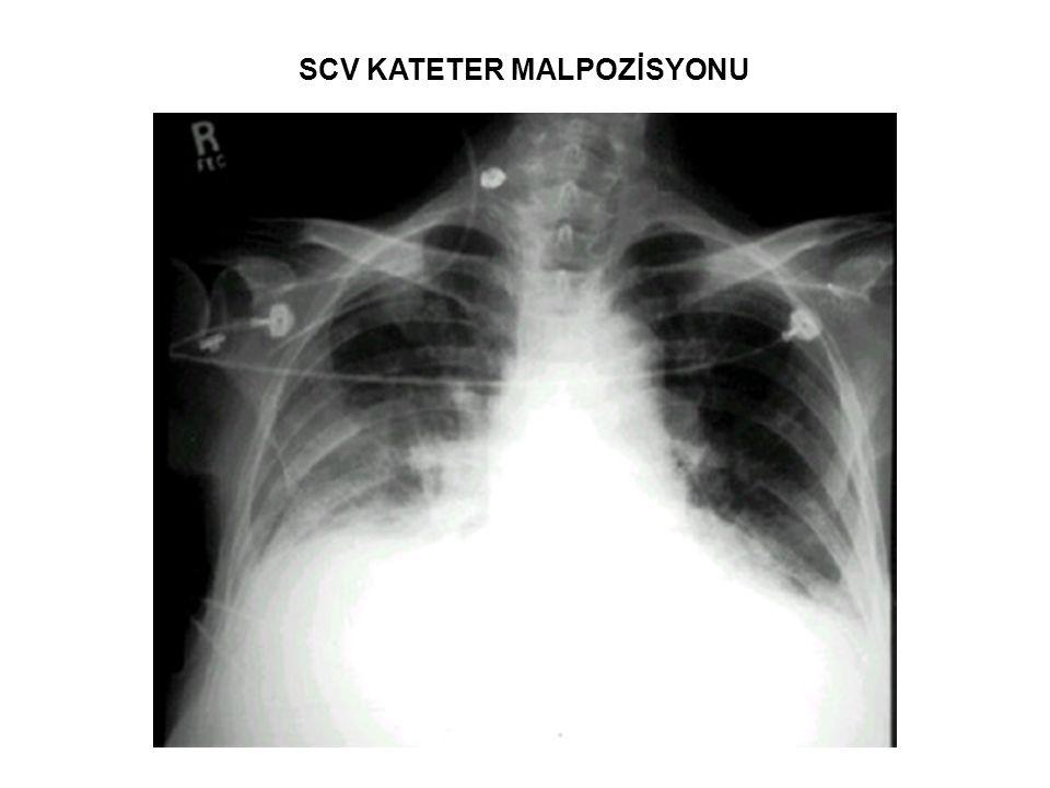 SCV KATETER MALPOZİSYONU