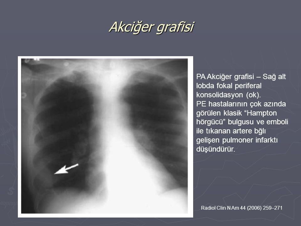 """PA Akciğer grafisi – Sağ alt lobda fokal periferal konsolidasyon (ok). PE hastalarının çok azında görülen klasik """"Hampton hörgücü"""" bulgusu ve emboli i"""