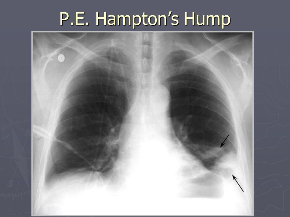 P.E. Hampton's Hump