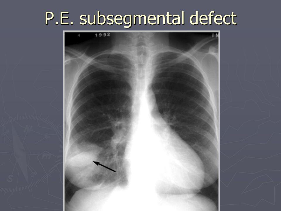 P.E. subsegmental defect